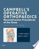 Campbell S Operative Orthopaedics Reconstructive Procedures Of The Knee E Book Book PDF
