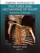 Forensic Pathology of Fractures and Mechanisms of Injury