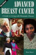 Advanced Breast Cancer