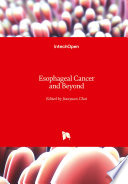 Esophageal Cancer and Beyond