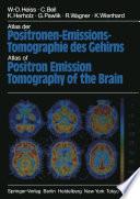 Atlas der Positronen Emissions Tomographie des Gehirns   Atlas of Positron Emission Tomography of the Brain