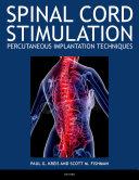 Spinal Cord Stimulation Implantation