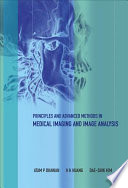 Principles and Advanced Methods in Medical Imaging and Image Analysis Book