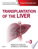 """Transplantation of the Liver E-Book"" by Ronald W. Busuttil, Goran B. Klintmalm"