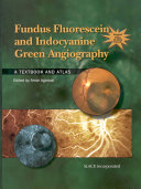 Fundus Fluorescein and Indocyanine Green Angiography