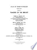 Tumors of the Breast