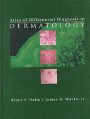 Atlas of Differential Diagnosis in Dermatology