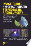 Image Guided Hypofractionated Stereotactic Radiosurgery