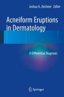 Pdf Acneiform Eruptions in Dermatology Telecharger