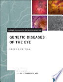 Genetic Diseases of the Eye