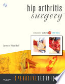 Operative Techniques: Hip Arthritis Surgery- E- Book
