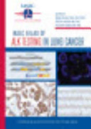 IASLC Atlas of ALK Testing in Lung Cancer