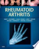 Rheumatoid Arthritis E Book Book