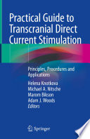 Practical Guide to Transcranial Direct Current Stimulation