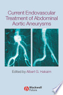 Current Endovascular Treatment of Abdominal Aortic Aneurysms Book