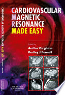 Cardiovascular Magnetic Resonance Made Easy E-Book