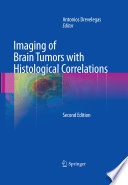 Imaging of Brain Tumors with Histological Correlations Book