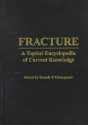 Fracture Book