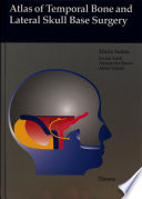 Atlas of Temporal Bone and Lateral Skull Base Surgery
