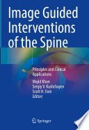 Image Guided Interventions of the Spine