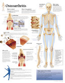 Osteoarthritis Paper Chart Book PDF