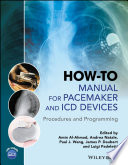 How to Manual for Pacemaker and ICD Devices