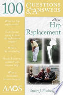 100 Questions   Answers About Hip Replacement Book