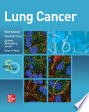 Lung Cancer  Standards of Care Book