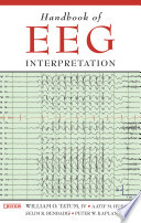 Handbook of EEG Interpretation