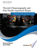 Thyroid Ultrasonography and Fine Needle Aspiration Biopsy: A Practical Guide and Picture Atlas