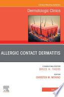 Allergic Contact Dermatitis An Issue of Dermatologic Clinics   E Book
