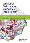 Ventricular Arrhythmias and Sudden Cardiac Death