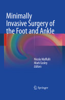 Minimally Invasive Surgery of the Foot and Ankle