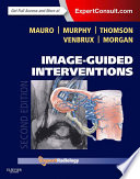 Image Guided Interventions E Book