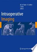 Intraoperative Imaging