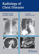 Radiology of Chest Diseases Pdf/ePub eBook