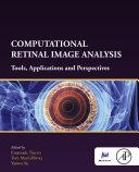 Computational Retinal Image Analysis Pdf/ePub eBook