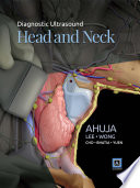 Diagnostic Ultrasound: Head and Neck E-Book