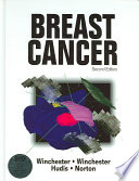 Breast Cancer Book PDF