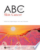 ABC of Skin Cancer Book