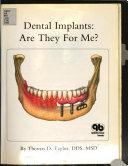 Dental Implants Book PDF