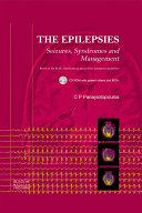 The Epilepsies