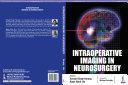 Intraoperative Imaging in Neurosurgery