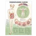 Understanding Cancer Anatomical Chart