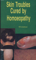 Skin Troubles Cured by Homeopathy