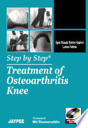 Step by Step   Treatment of Osteoarthritis Knee Book