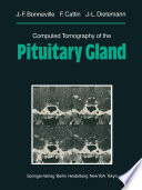 Computed Tomography Of The Pituitary Gland Book PDF
