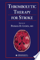 Thrombolytic Therapy for Stroke