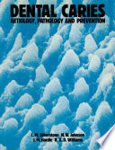 Dental Caries Aetiology Pathology And Prevention Book