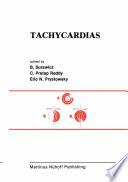 Tachycardias Book PDF